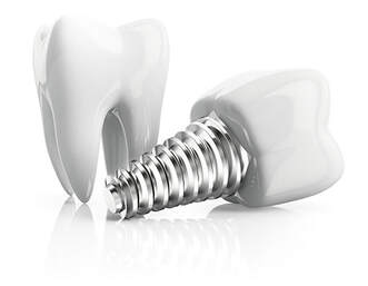 Dentist in El Paso - Dental Implants