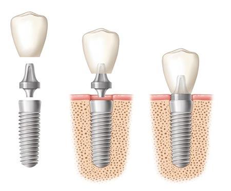 Dental Implants El Paso, TX