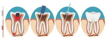 Dentist in El Paso - Root Canals