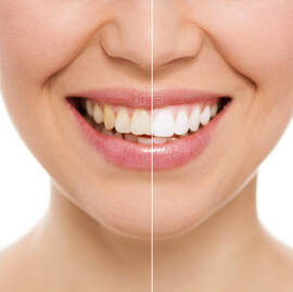 Dentist in El Paso - Teeth Whitening